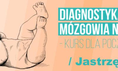 diagnostyka-usg-mozgowia-noworodka